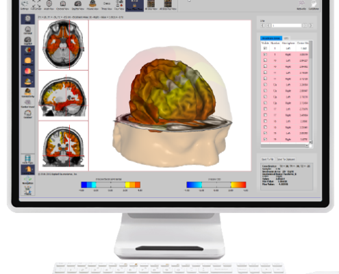 (PCS) Traumatisch hersenletsel